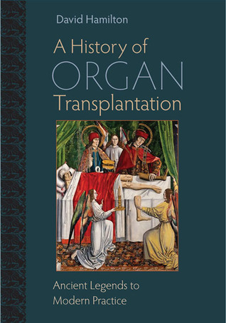 A History of Organ Transplantation: Ancient Legends to Modern Practice
