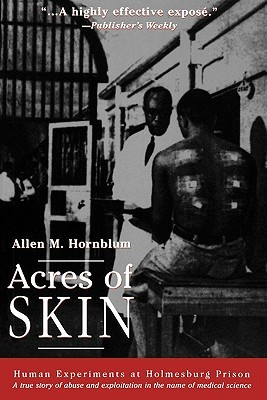 Download Acres of Skin: Human Experiments at Holmesburg Prison PDF by Allen M. Hornblum