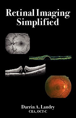 Retinal Imaging Simplified