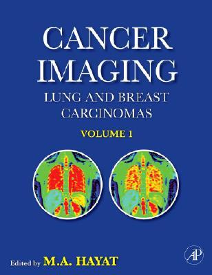 Cancer Imaging, Volume 1: Lung and Breast Carcinomas (Cancer Imaging) (Cancer Imaging)
