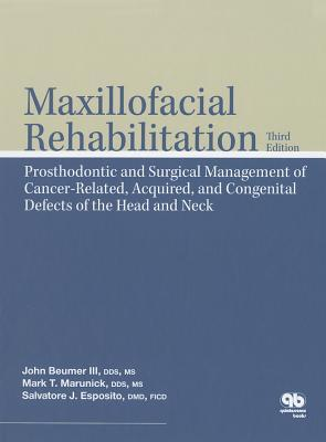Maxillofacial Rehabilitation: Surgical and Prosthodontic Management of Cancer-Related Acquired, and Congenital Defects of the Head and Neck