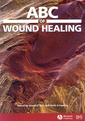 ABC of Wound Healing