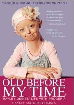 Old Before My Time by Hayley Okines