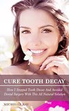 Cure Tooth Decay: How I Stopped Tooth Decay And Avoided Dental Surgery With This All Natural Solution