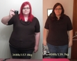 Before and After Weight Loss Pictures