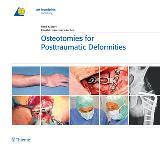 Osteotomies for Posttraumatic Deformities  by  Rene Marti