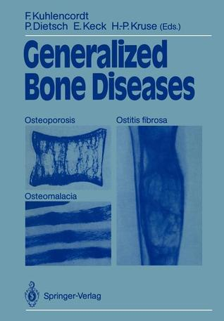 Generalized Bone Diseases: Osteoporosis, Osteomalacia, Ostitis Fibrosa. Proceedings of 2nd Annual Conference of the German Society for Osteology  by  Friedrich Kuhlencordt