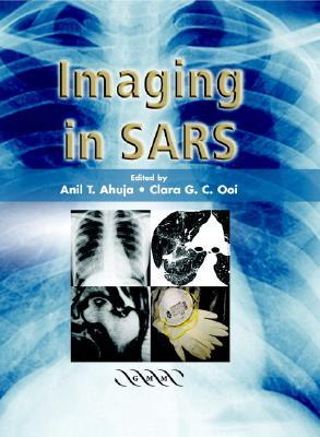 Imaging in SARS  by  Anil T. Ahuja