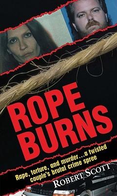 Rope Burns Robert    Scott