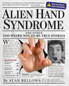 Alien Hand Syndrome and Other Too-Weird-Not-To-Be-True Stories