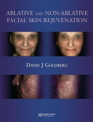 Ablative and Non-Ablative Facial Skin Rejuvenation  by  David J. Goldberg