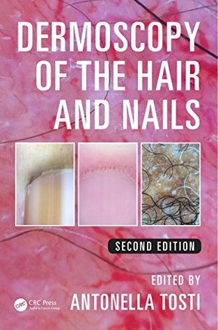 Dermoscopy of the Hair and Nails, Second Edition  by  Antonella Tosti